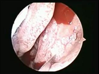 鼻部手术高级职称组